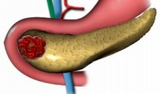 Признаки болезни поджелудочной железы