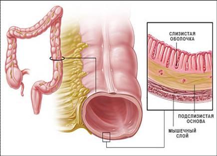 Признаки болезни кишечника