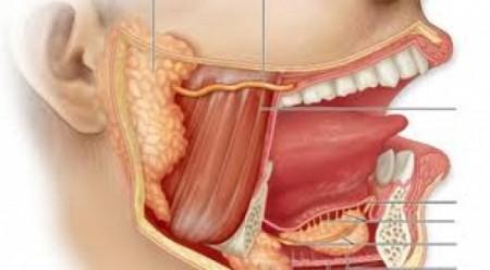 Симптомы слюннокаменной болезни