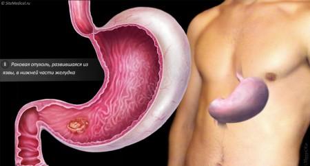 Симптомы рака желудка на ранней стадии