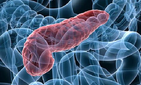 Лечение панкреатита в домашних условиях