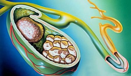 лечение калькулезного холецистита без операции
