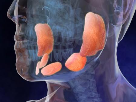 воспаление околоушной слюнной железы