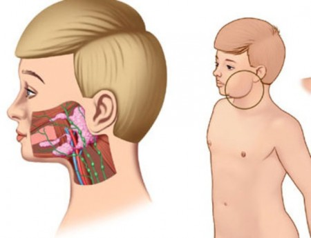 воспаление околоушной слюнной железы - свинка