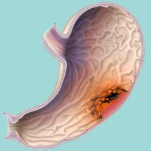 Рак желудка 4 стадия сколько живут