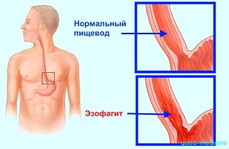 Симптомы канидозного эзофагита