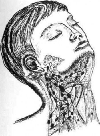 Симптомы воспаления слюнных желез
