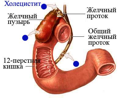 Хронический некалькулезный холецистит