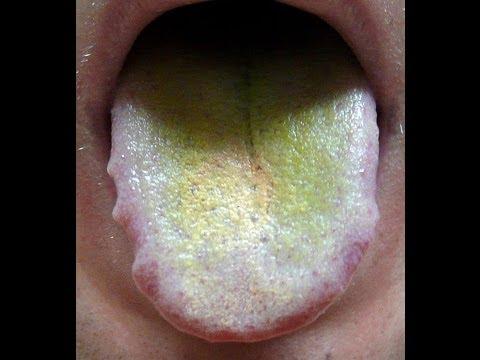 Зеленый налет на языке причины