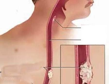признаки рака пищевода на ранней стадии