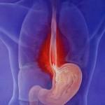 Дистальный катаральный эзофагит