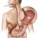 Обследование желудка без гастроскопии