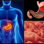 Очаговая атрофия слизистой желудка