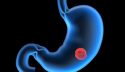 Симптомы опухоли желудка
