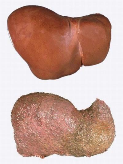 симптомы последней стадии цирроза печени