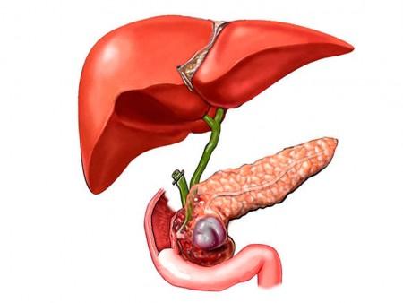 Симптомы приступа острого холецистита