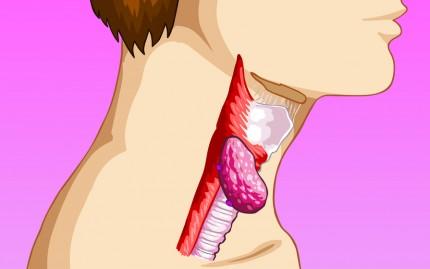 Симптомы рака горла у женщин