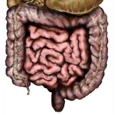 Выраженный пневматоз кишечника