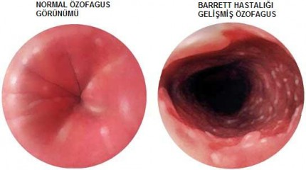 Симптомы пищевода Баретта