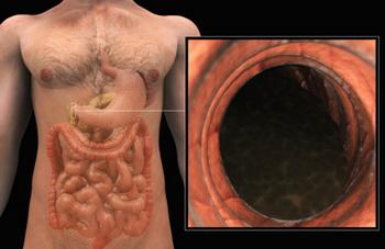 Язва антрального отдела желудка