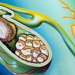 Калькулезный холецистит: лечение без операции