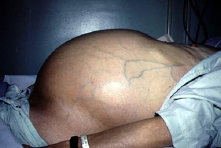 лечение цирроза печени с асцитом