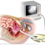 Что показывает узи кишечника?