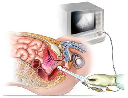 Что показывает узи кишечника