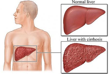 Цирроз печени прогноз жизни