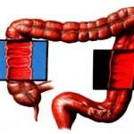 Как лечить хронический колит кишечника?