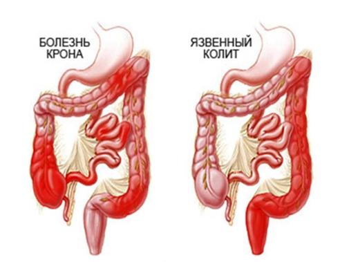 Симптомы заболевания толстого кишечника