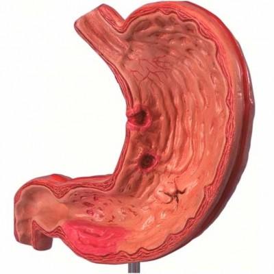 Первые признаки появления язвы желудка