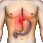 Симптомы язвы желудка у взрослых