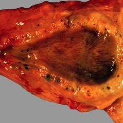 Холестероз стенок желчного пузыря