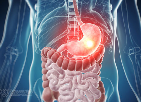Симптомы язвы желудка и кишечника