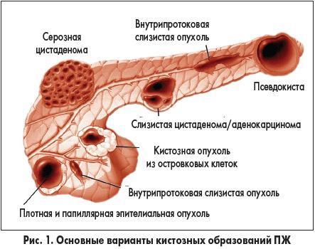 Киста поджелудочной железы прогноз