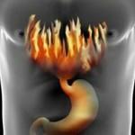 Признаки гастрита желудка: симптомы и лечение