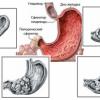 Аденокарцинома желудка: прогноз