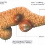 Причины кисты поджелудочной железы