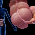 Осложнения после удаления аппендицита