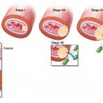 Рак пищевода: первые симптомы