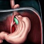 Симптомы грыжи диафрагмы пищевода