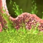 Причины повышенной кислотности желудка