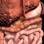 Симптомы цирроза печени у взрослых