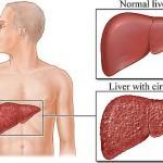 Цирроз печени: прогноз жизни