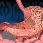 Первые признаки язвы желудка